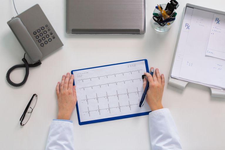 EKG vizsgálat